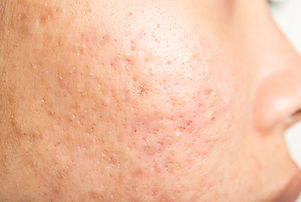 acne scar .jpg