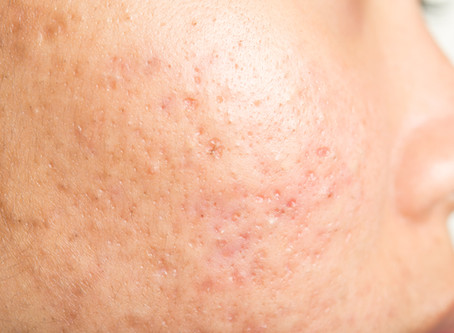 How to get rid of Acne Scars!
