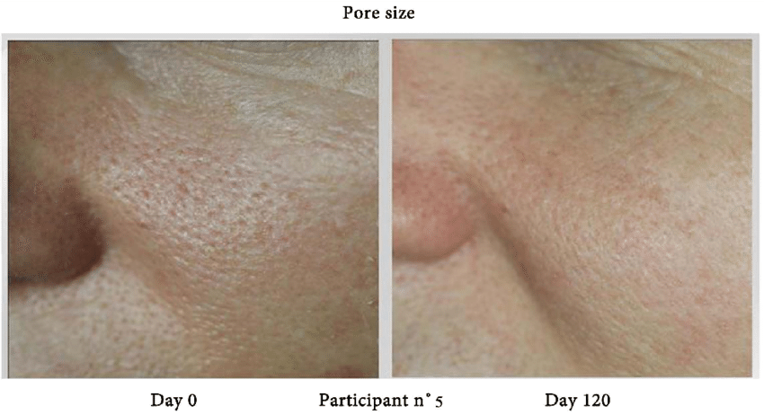Pore-size-before-and-after-treatment-for-participant-5.png