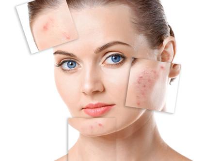 Acne Treatment Program