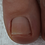 Thumbnail: Footlogix Nail Tincture