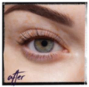 LVL_ After Treatment Image (Framed).png