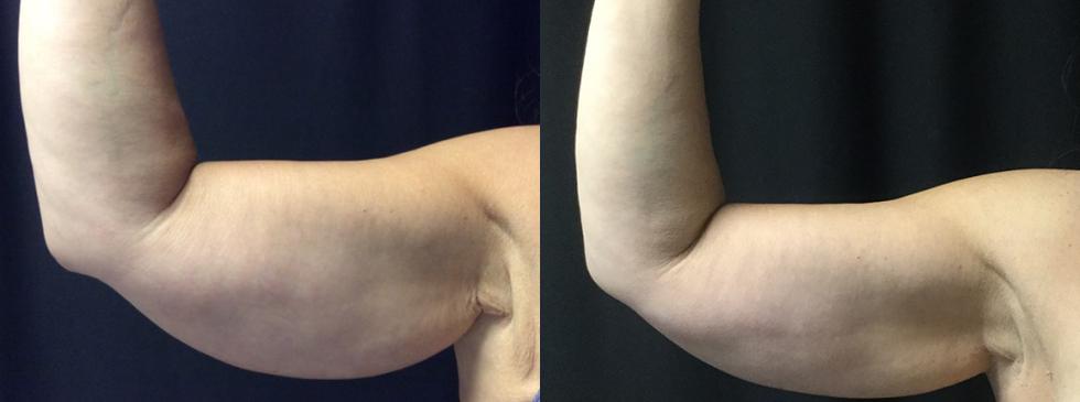 CoolSculpting-Right-Arm