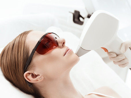 How to Prepare for Laser Hair Removal Treatment