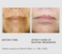 Before & After FYBBL - The Vein Treatment Center of New Jersey