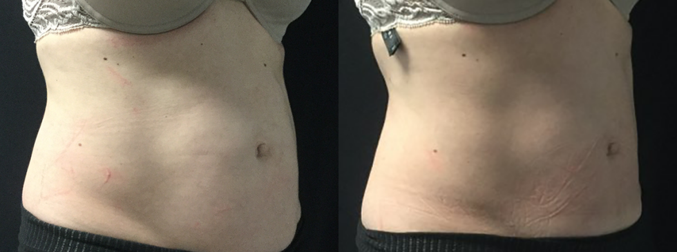 CoolSculpting-Stomach