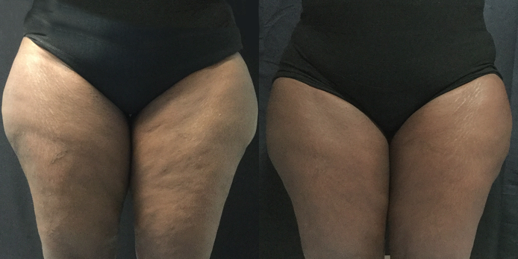 Coolsculpting-thighs-Before-and-After-10