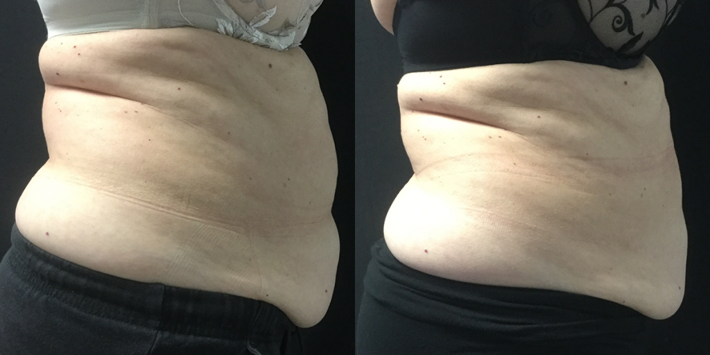 CoolSculpting-Stomach-Side
