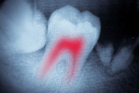 Root canal photo