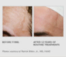 Before & After FYBBL Image 1 - The Vein Treatment Center of New Jersey