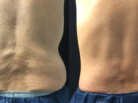 Can I really freeze away my stubborn fat with CoolSculpting?