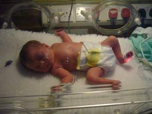 Three Premature Babies…