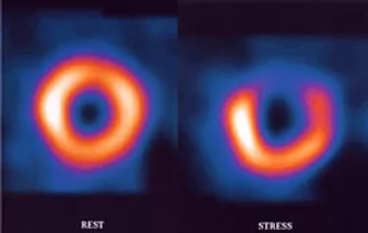 cardiovascular imaging.webp