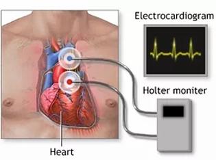 heart rythm monitoring.webp