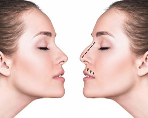 Nasenkorrektur / Rhinoplastik