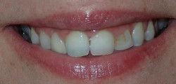 Before: peg lateral #10 with old composite buildup