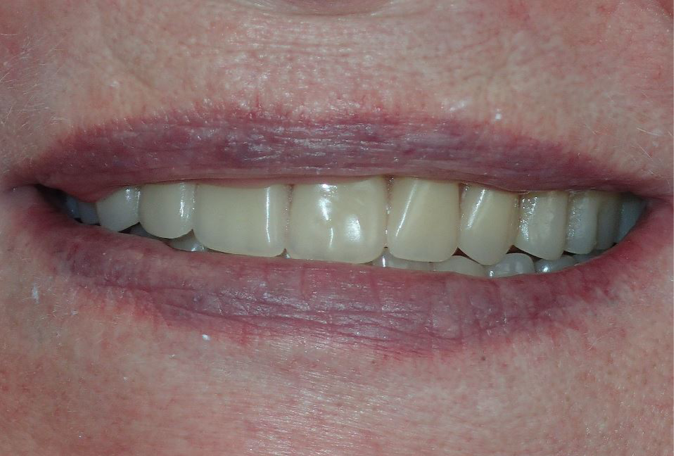 After: new complete dentures