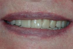 After: new complete dentures