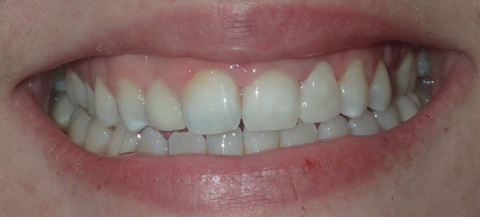 After: laser gingivectomy #10 with new composite buildup