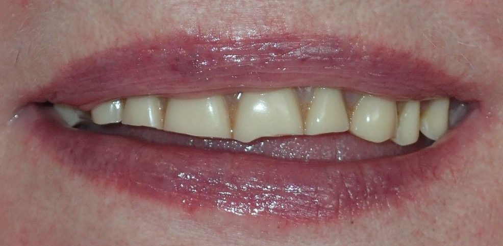 Before: severely worn upper denture