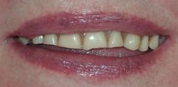 Before: severely worn upper denture