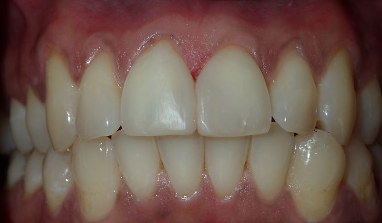 After: free-handed composite diastema closure