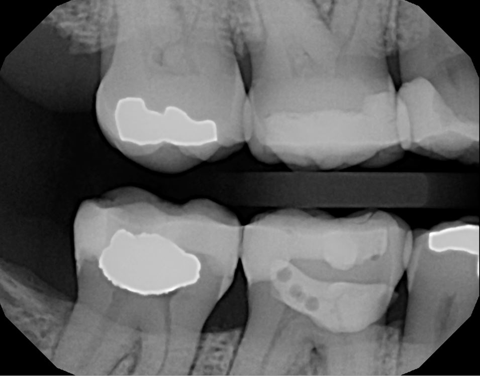 Before: large restorations #30 and 31 at risk for fracture