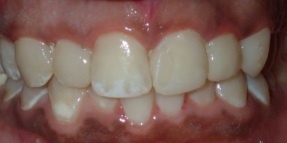 After: composite restorations