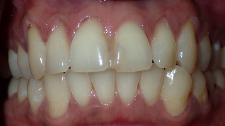 Before: #8 and 9 bonded together with composite