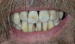 Before: generalized stage IV periodontitis