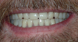 After: full mouth extractions, 4 quads alveoloplasty, conventional complete dentures