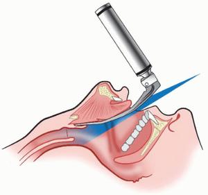 Procedure for direct laryngoscopy