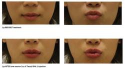 Lip- Teosyal