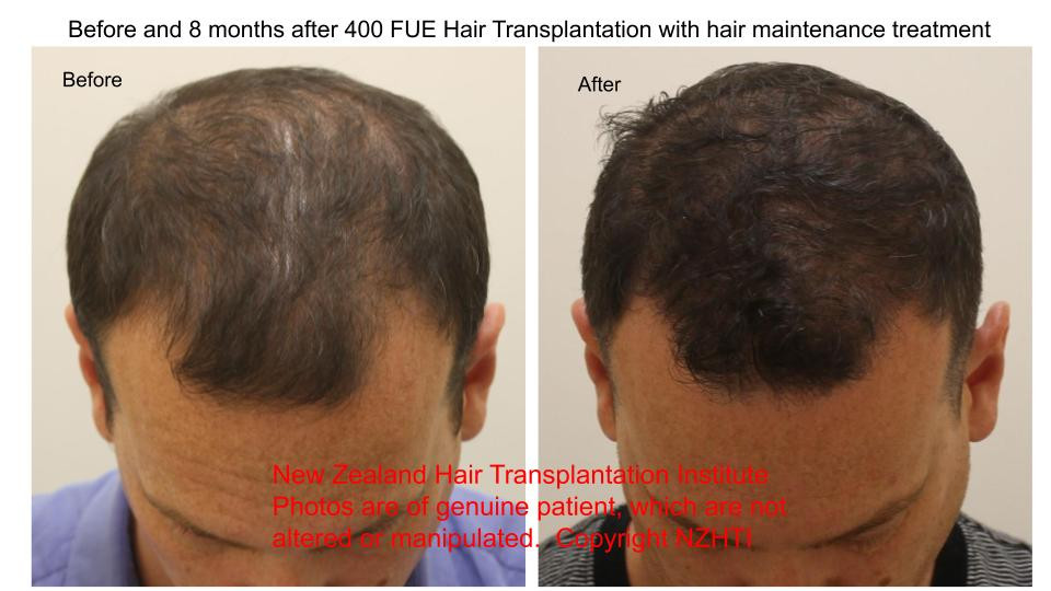 Before and 8 months after 400 FUE (Folli