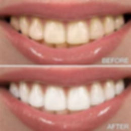 before and after teethwhitening.jpg