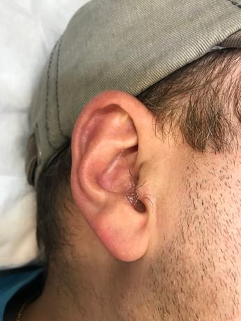 electrolysis-ear