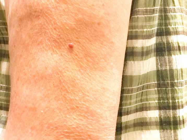 blood mole