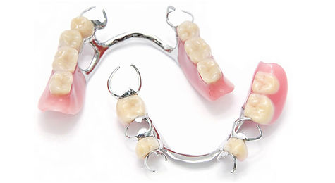 casted chrome denture