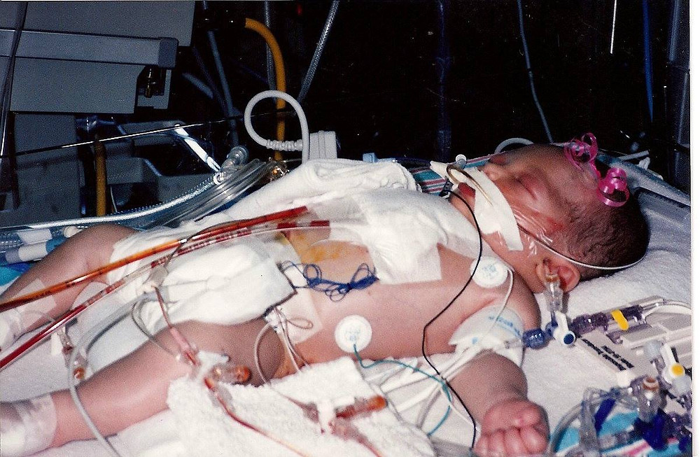 Emily Horton Heart Surgery 1995