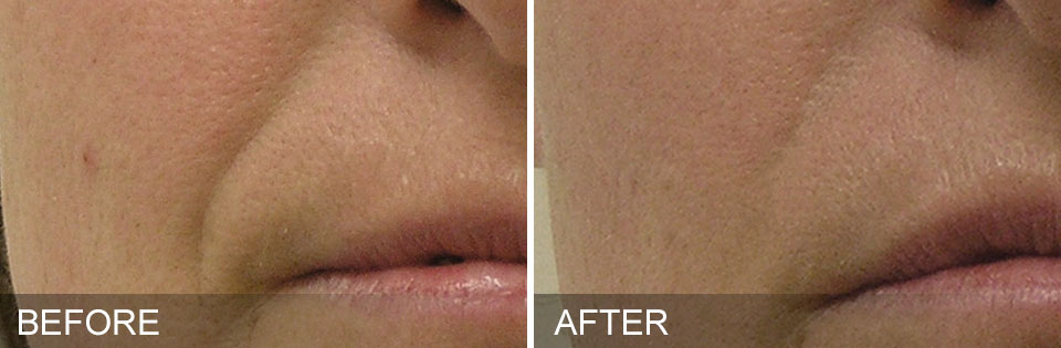 before-after-NasolabialFolds