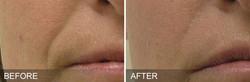 before-after-NasolabialFolds