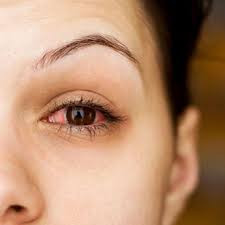 Homeopathy for Pink Eye