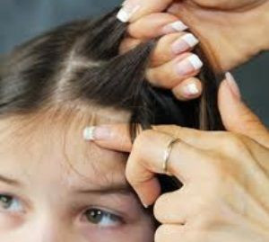 Homeopathy & Head Lice