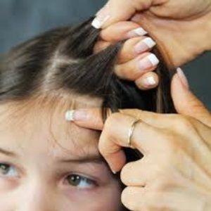 Homeopathy & Head Lice