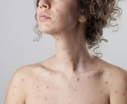 Homeopathy for Chicken Pox