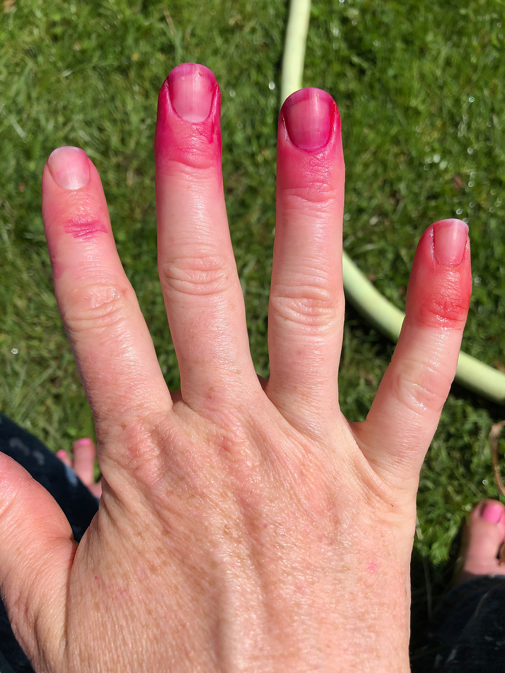 Hand with bright pink fingertips from leaking vinyl gloves.