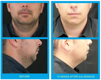 Coolsculpting Before and After Chin