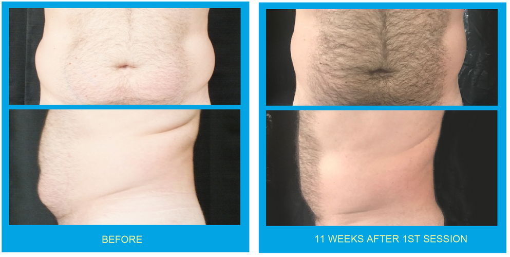 Coolsculpting Before and After Lower Abs