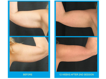 Coolsculpting Before and After Arms