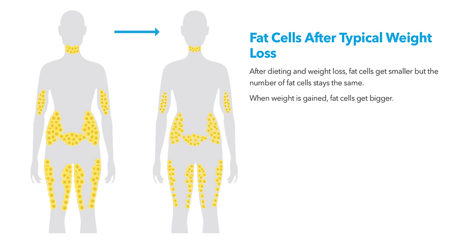 Fat Cells After Weight Loss